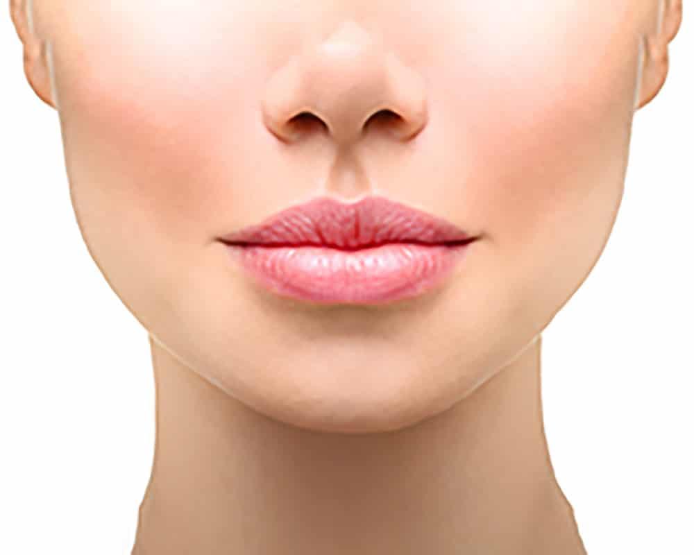 Lippenunterspritzung mit Hyaluronsäure